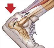 achilles-tendon-rupture
